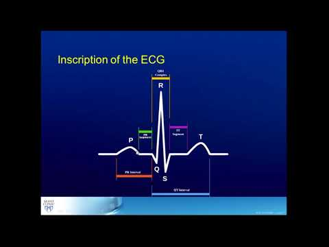 How to Interpret Heart Rhythms on ECGs