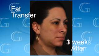 Fat Transfer Healing Process - New Jersey - Dr. Robert Glasgold