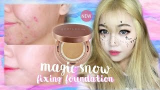 (Acne Skin) April Skin Magic Snow Fixing Foundation Review