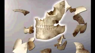 Criminal Case  - Case 21 Examine Smashed Skull