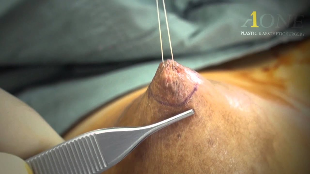 Correction Of Inverted Nipples 28