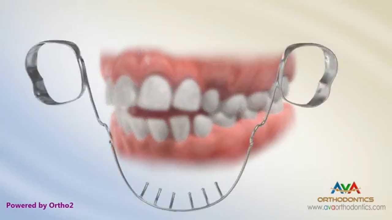 Openbite Treatment by Lower Tongue Crib - Orthodontic ...