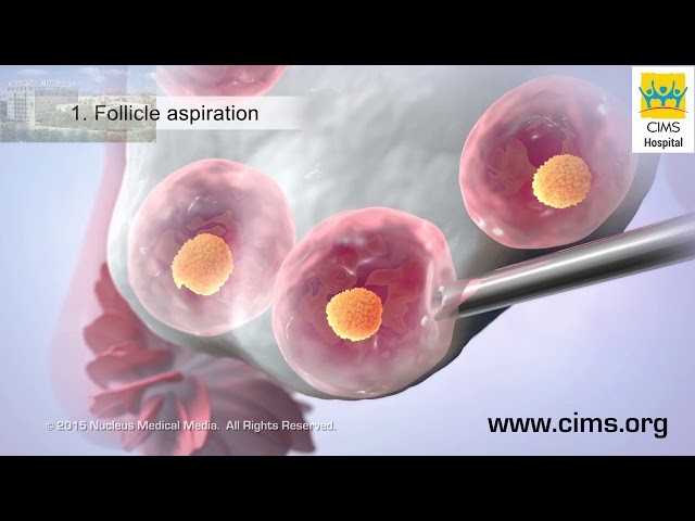 In Vitro Fertilization - CIMS Hospital