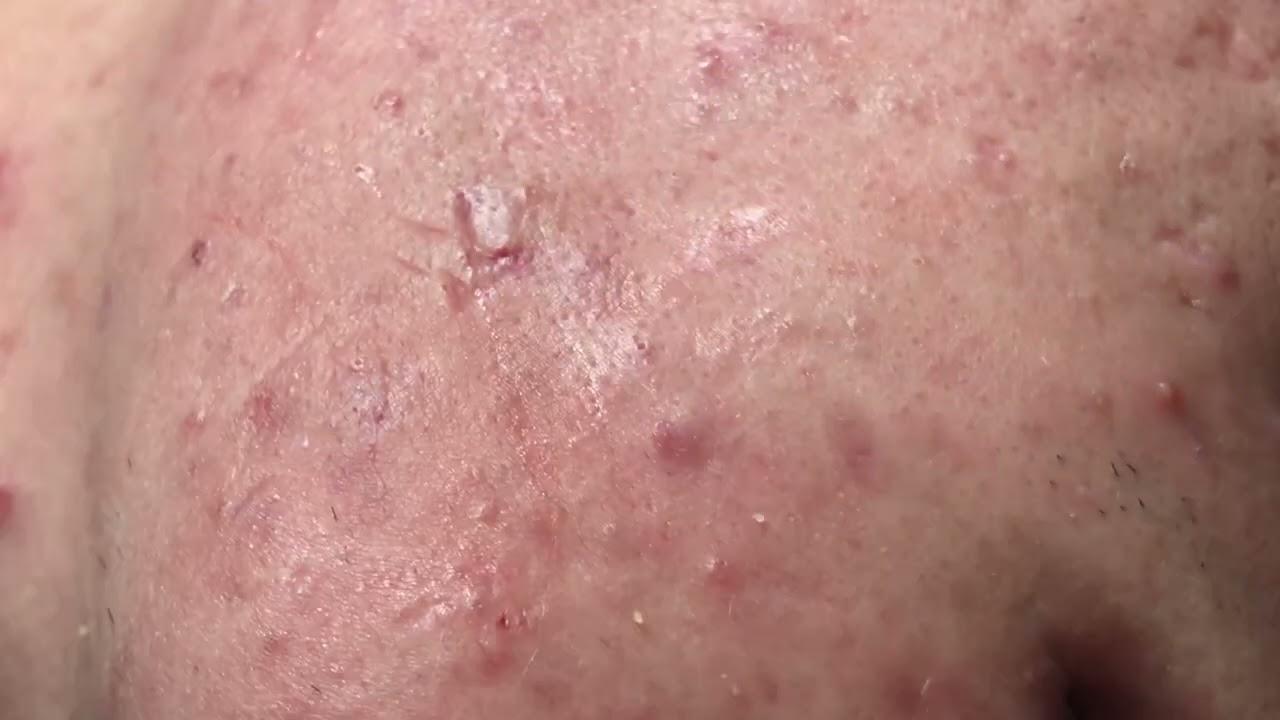 Acne Treatment - Trị Mụn Đà Nẵng Mai Ngọc