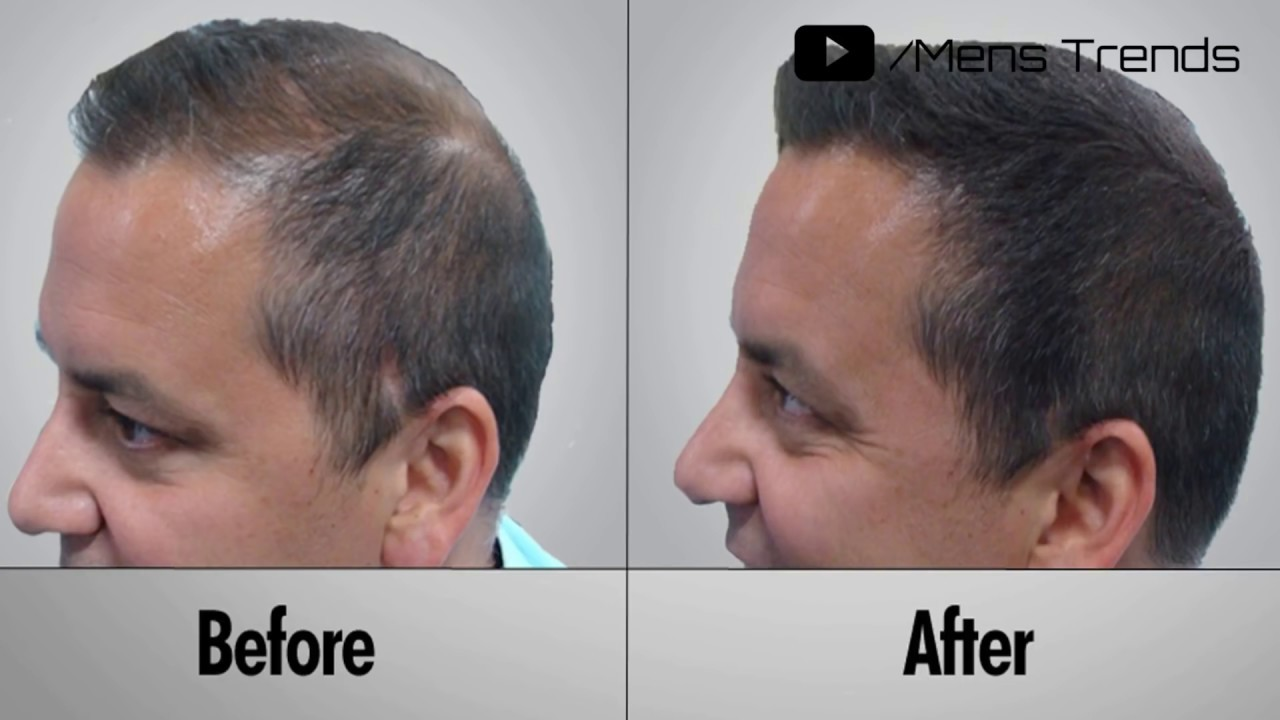 Derma Rolling For Hair Regrowth | Minoxidil | How To Use Derma Rolling  System | Hair regrowth system