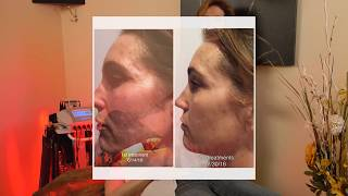 Facial Rejuvination - Westlake Body Contouring