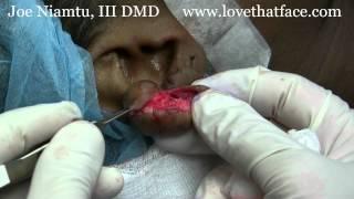 Dr Joe Niamtu Iii Demonstrates Method Keloid Removal