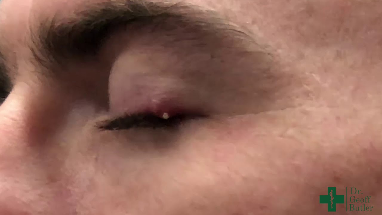 Puncturing a Small Stye or Cyst along the Eyelid Margin