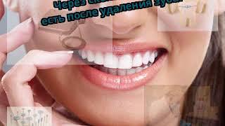 Через сколько можно есть после удаления зуба?