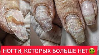 ОГОРОД VS МАНИКЮР
