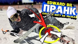 EDWARD BIL ПРАНК / СЛОМАЛ НОГУ НА ЛЫЖАХ / РЕАКЦИЯ ЛЮДЕЙ НА СКЛОНЕ