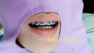 แนะนำสียางจัดฟัน สีม่วง Jelly purple