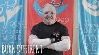 The Weightlifter With Butterfly Skin | BORN DIFFERENT