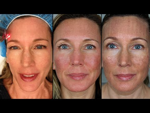 heal time for facial resurfacing