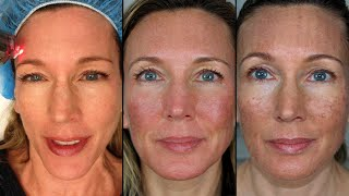 My Fraxel Dual Laser Experience | Procedure & Recovery Vlog(OPEN ME for discount codes, more videos, product links, & what I'm wearing today. (Click SHOW MORE) Style, Beauty, Anti-Aging, & Health for Women in Their ..., 2016-02-09T12:30:00.000Z)
