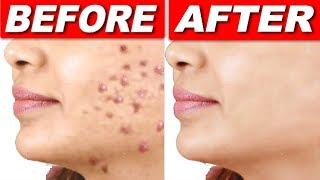 रातों रात पिंपल्स हटाने का रामबाण नुस्खा Remove pimples permanently/best acne treatment at home