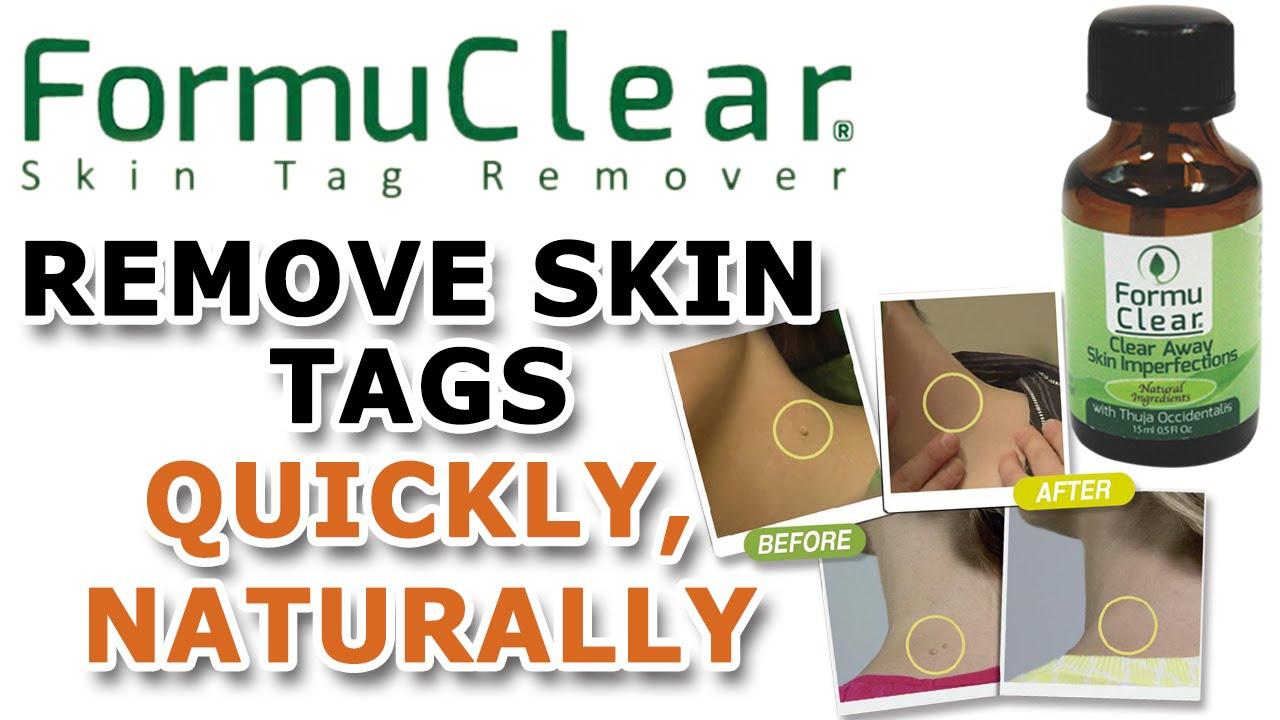 saniskin skin tag remover