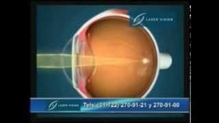 Oftalmología - Cirugía Refractiva - Miopía, Hipermetropía y Astigmatismo