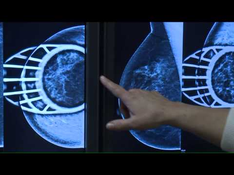 Future Cancer Of The Breast Care Could Use Artificial Intelligence