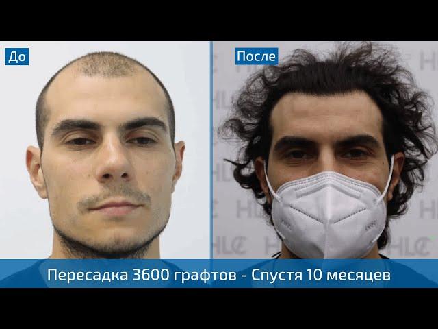 Результат пересадки 3600 волос мужчине - До и После - Спустя 10 месяцев - Клиника HLC