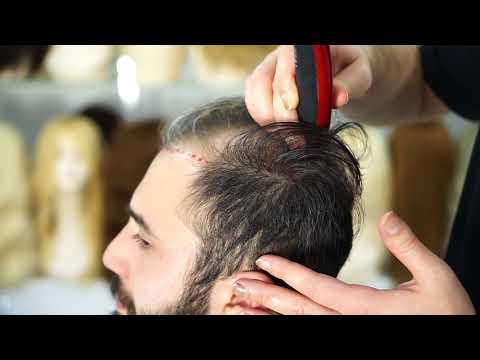 Protez Saç Nasıl Uygulanır