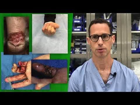 Plastic Surgery Saves Fingers After Ring Avulsion Injuries —Video Discussion By Kyle Chepla, MD