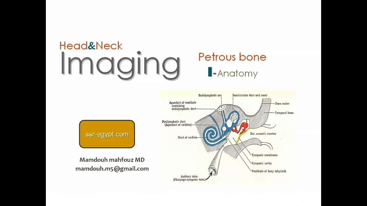 Imaging of Petrous bone part 1 ( Anatomy ) - Dr Mamdouh Mahfouz ...