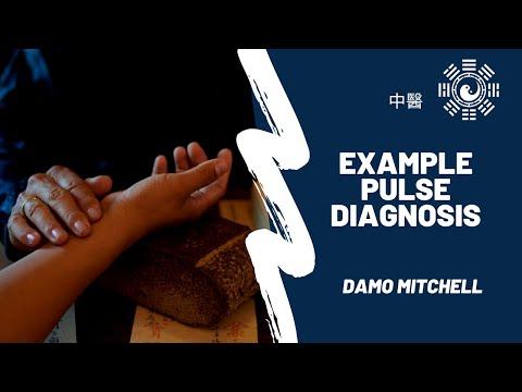 Example Pulse Diagnosis thumbnail