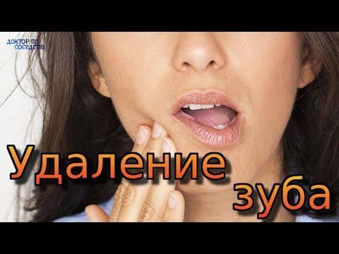 видео: ЛЕЧЕНИЕ ПОСЛЕ УДАЛЕНИЯ ЗУБА / TREATMENT AFTER REMOVAL OF TEETH