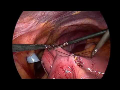 Surgical and Medical Treatments for Type 2 Diabetes