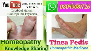 Fungle Infection Tinea pedis ! Athlete's foot ! Homeopathic Remedies for Tinea pedis ?