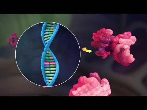 3D Video Understanding ATTR Amyloidosis