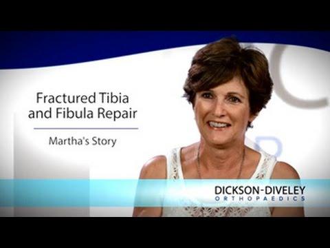 Fractured Tibia and Fibula Repair: Martha