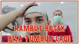 RAMBUT RONTOK DAN BOTAK PADA ANAK (ALOPECIA AREATA).