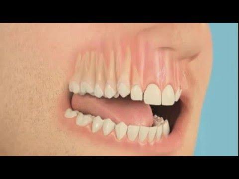 Неправильно вылез зуб 69