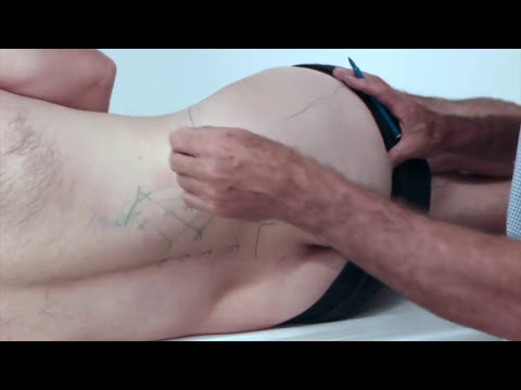 Treating Trigger Points - Gluteus Maximus