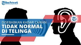 Obat Alami Rumahan untuk Atasi Vertigo *** Visit our Website: http://nakita.grid.id/ Facebook page: .