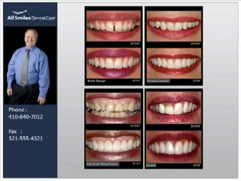 Cosmetic Dentistry by Westminster Maryland Dentist Dr. ...