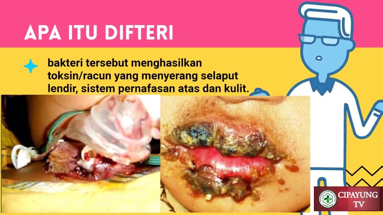 Apa Itu Penyakit Difteri Youtube