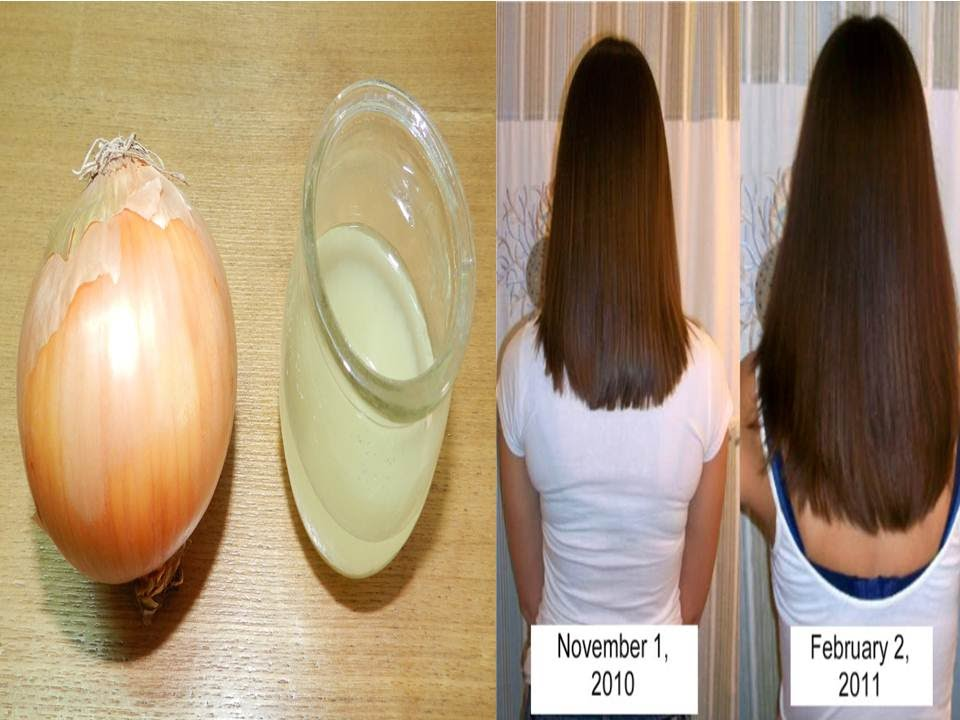 How To Grow Hair Naturally Fast Using Onion Juice And Eggs