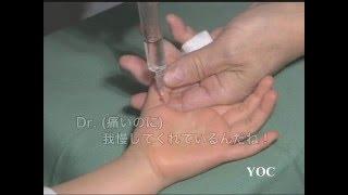 小児のばね指手術(握り母指) thumbnail