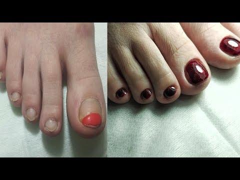 ❤ МОЙ первый ПЕДИКЮР ❤ ЭКСПРЕСС педикюр ❤ ОБРАБОТКА пальцев ног ❤ АППАРАТНЫЙ педикюр ❤