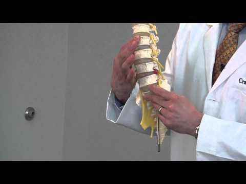 Craig Morton, M.D., discusses Top Causes of Low Back Pain.