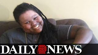 Bronx girl whose friend scalded her face makes amazing recovery
