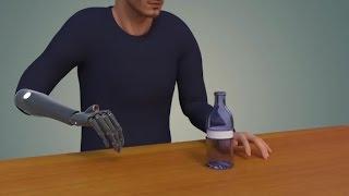 This bionic arm has vision