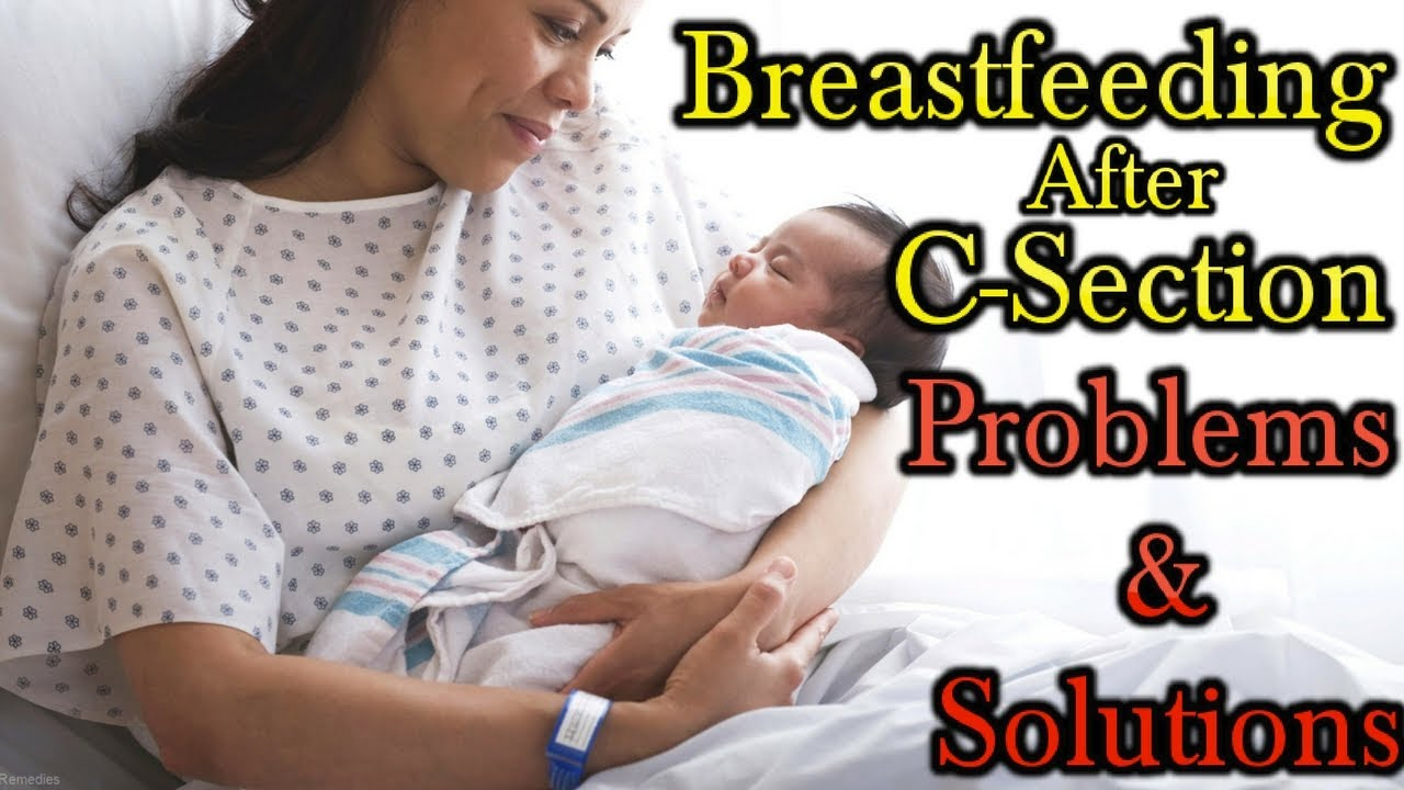 Breastfeeding after cesarean section