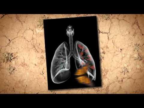 asbestos-removal-in-home-victoria