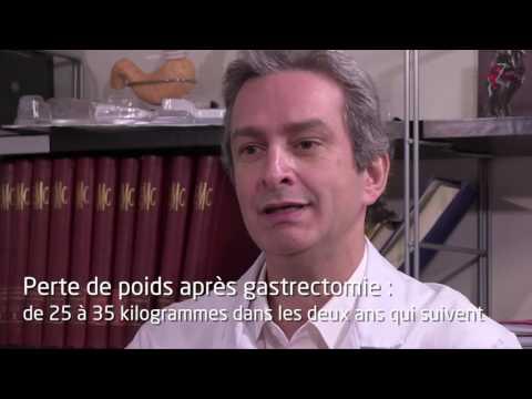 Chirurgie de l'obésité  – La gastrectomie longitudinale ou sleeve