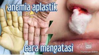 Bapak Januarto, seorang penderita penyakit anemia aplastik yang tinggal di daerah Tangerang Selatan..