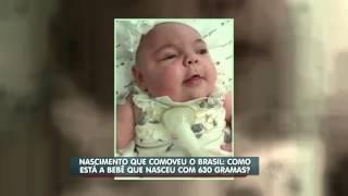 Como está a bebê Laisa que nasceu com 630g?